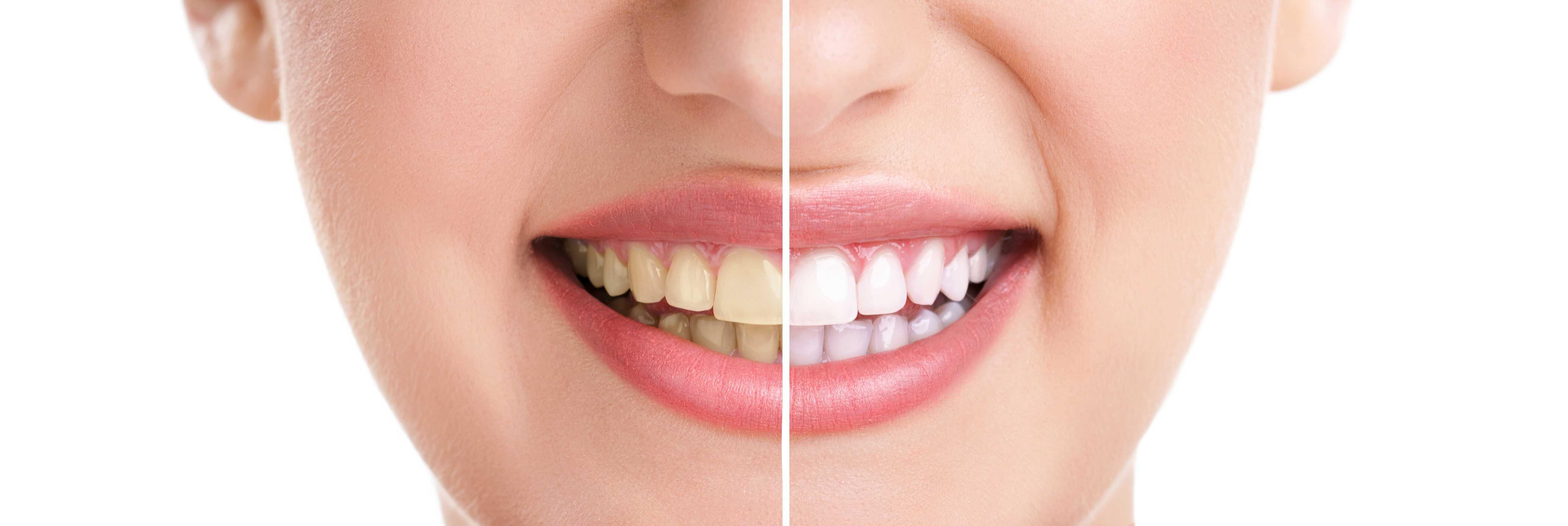 woman teeth smile