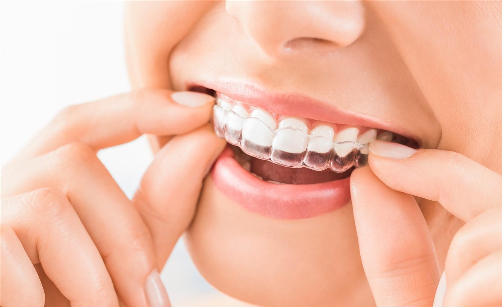 Biological dentistry Edmonton